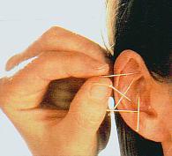 auriculothérapie avec aiguilles