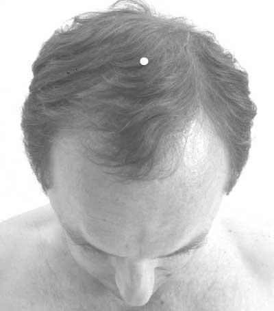 Acupression et maux de tête VG 20