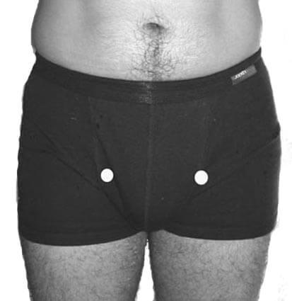 point d'acupression E30, Estomac 30, énergie sexuelle